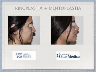 Mentoplastia-594792
