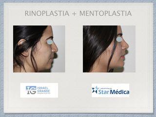 Rinoplastia + Mentoplastia