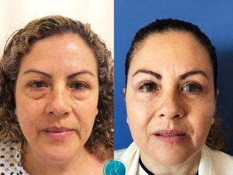 Rejuvenecimiento facial-633941