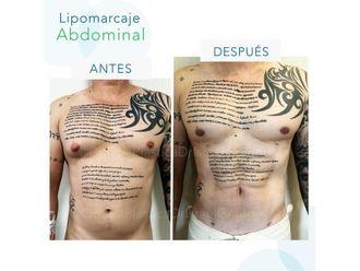 Lipoescultura-641825