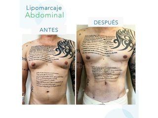 Lipomarcaje Abdominal