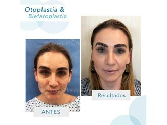 Otoplastia-641827