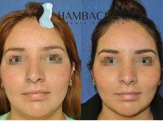 Bichectomia y liposuccion de cuello