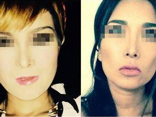Antes y despues de BICHECTOMIA con APLICACIÓN DE FILLERS PARA CONTORNO DE LABIOS