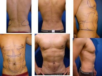 Abdominoplastia-643424