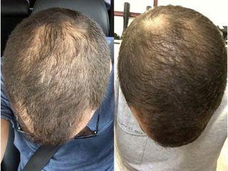 Regeneración de cabello con células madre