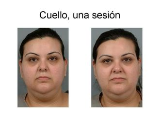 Radiofrecuencia - 643447