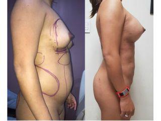 Lipoabdomino+implantes - Dr. Mario Vélez Palafox