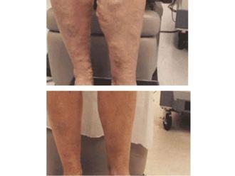 Cirugía varices-498385