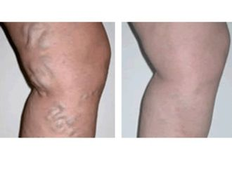 Cirugía varices-498386
