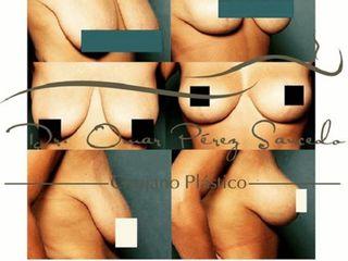 Antes y despues de mastopexia