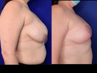 Reducción de mamas - 796132