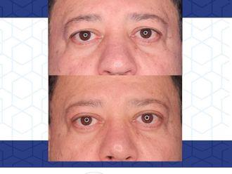 Blefaroplastia - 796625