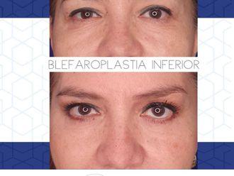 Blefaroplastia - 797179