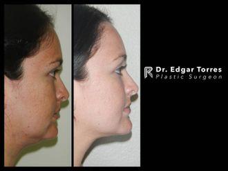 Cirugía de papada-649887
