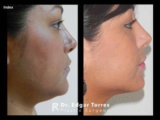 Cirugía de papada-649889