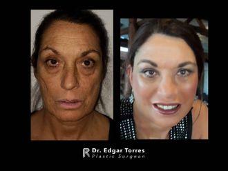 Rejuvenecimiento facial - 649909