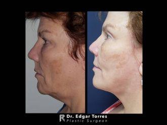 Rejuvenecimiento facial - 649911