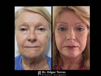 Rejuvenecimiento facial - 649912