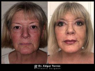 Rejuvenecimiento facial - 649913
