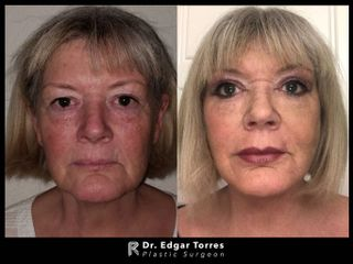 Facelift and neck