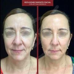 Rejuvenecimiento facial - Dra. Dafne Arellano Montalvo