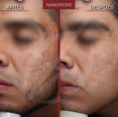 Nanopore