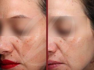 Rejuvenecimiento facial-737568