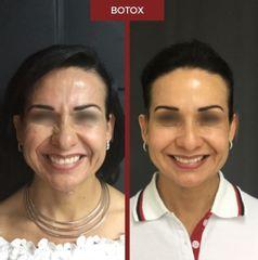 Bótox - Dra. Dafne Arellano Montalvo