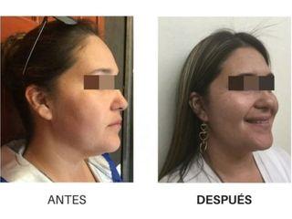 Hilos tensores - Dra. Dafne Arellano Montalvo