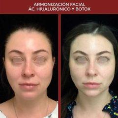 Ácido hialurónico - Dra. Dafne Arellano Montalvo