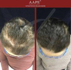Alopecia - Dra. Dafne Arellano Montalvo