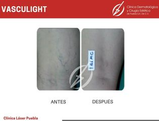 Cirugía varices - Dra. Dafne Arellano Montalvo