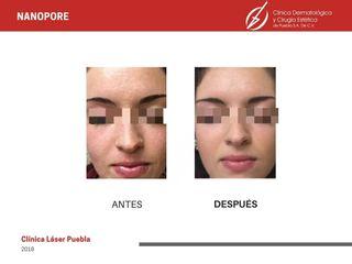 Nanopore - Acné - Dra. Dafne Arellano Montalvo