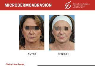 Micropigmentación - Dra. Dafne Arellano Montalvo