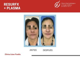 Plasma rico en plaquetas - Dra. Dafne Arellano Montalvo