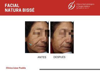 Tratamientos faciales - Dra. Dafne Arellano Montalvo