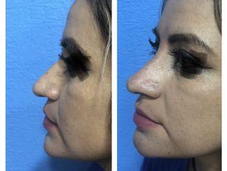 Medicina estética-687730