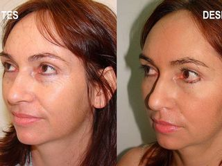 Antes y después de blefaroplastia