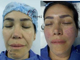 Rejuvenecimiento facial - 641529