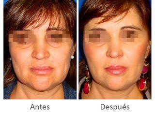 Antes y después de armonía facial: Hilos tensores + Bioplastia