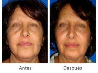 Cirugía de papada-628766