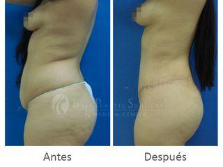 Excelentes resultados de una abdominoplastia