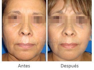 Rejuvenecimiento facial-631732