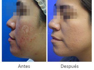 Tratamiento antiacné-631734