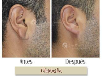 Otoplastia-634629