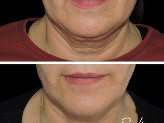 Cirugía de papada - 663983