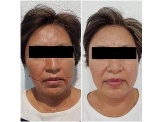 Tratamientos faciales - 640276