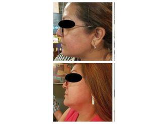Tratamientos faciales - 640278