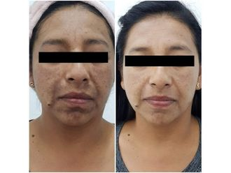 Tratamientos faciales - 640281